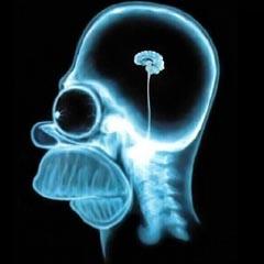 d9c1390937cc374abaf4_brain-on-teenagers.jpg