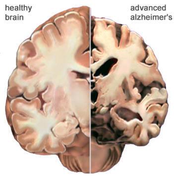 574fe8606b6636ddbb39_alzheimer_brain.jpg