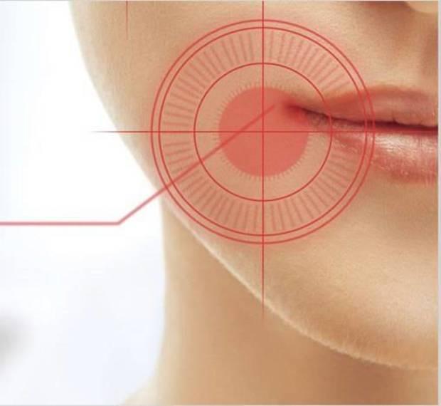 4a989a3b0395801499e0_Oral_Cancer.jpg