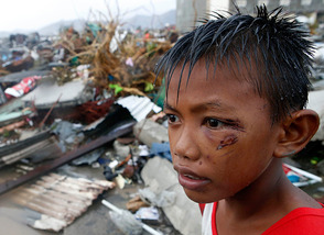 The Devastation of the Storm on the Face of a Child