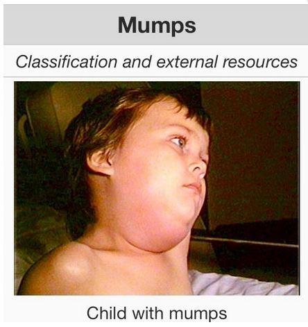 15e9c12fcddad0382380_mumps.JPG